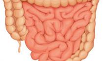 Crohn's Disease and Diet